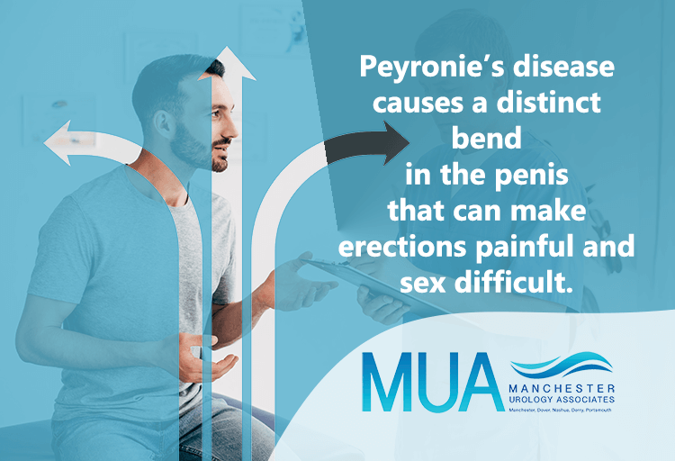 Peyronie's disease causes a distinct bend in the penis that can make erections painful and sex difficult.